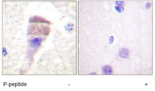 Immunohistochemistry (Formalin/PFA-fixed paraffin-embedded sections) - Anti-PKC mu/PKD (phospho S205) antibody (ab59413)